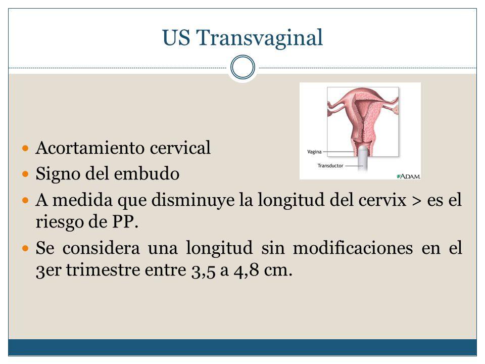US Transvaginal Acortamiento cervical Signo del embudo A medida que disminuye la longitud del cervix > es el riesgo de PP.