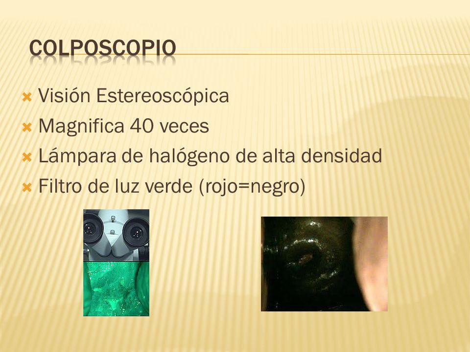 Visión Estereoscópica Magnifica 40 veces Lámpara de halógeno de alta densidad Filtro de luz verde (rojo=negro)