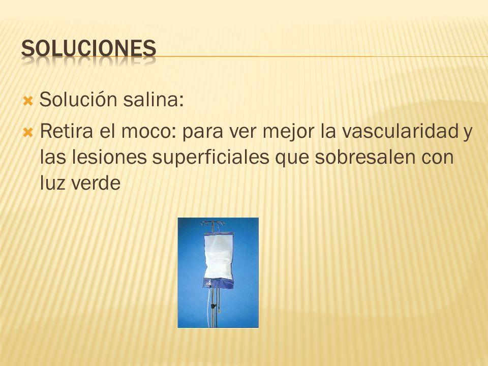 Solución salina: Retira el moco: para ver mejor la vascularidad y las lesiones superficiales que sobresalen con luz verde