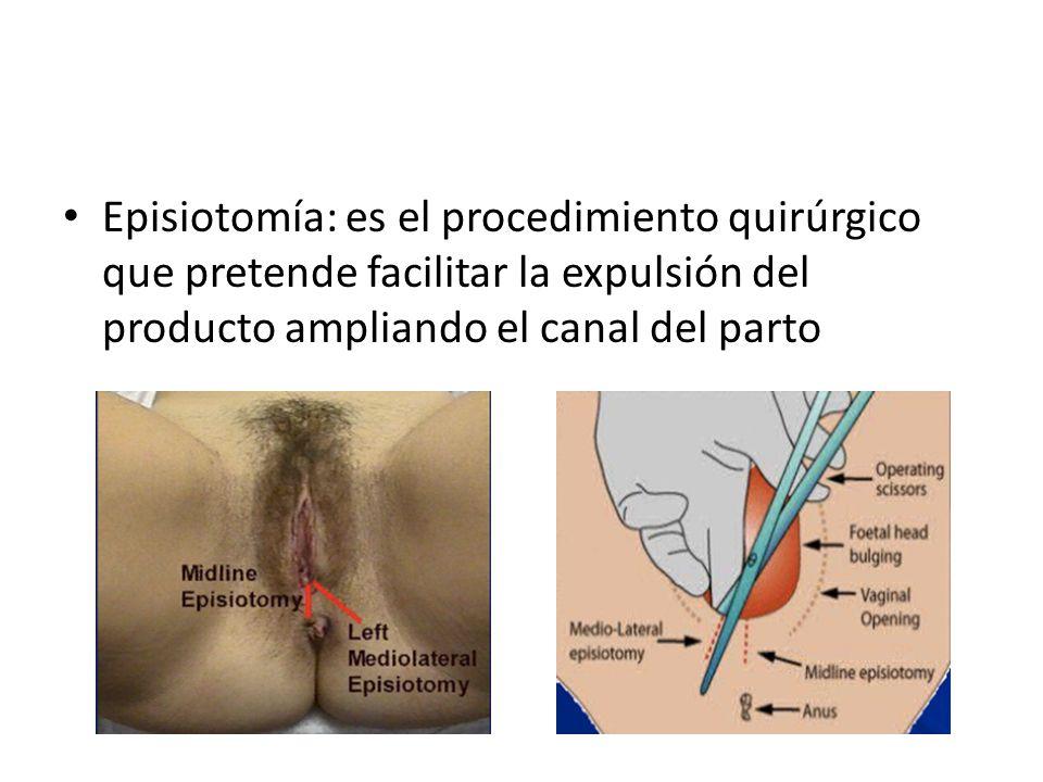 Episiotomía: es el procedimiento quirúrgico que pretende facilitar la expulsión del producto ampliando el canal del parto
