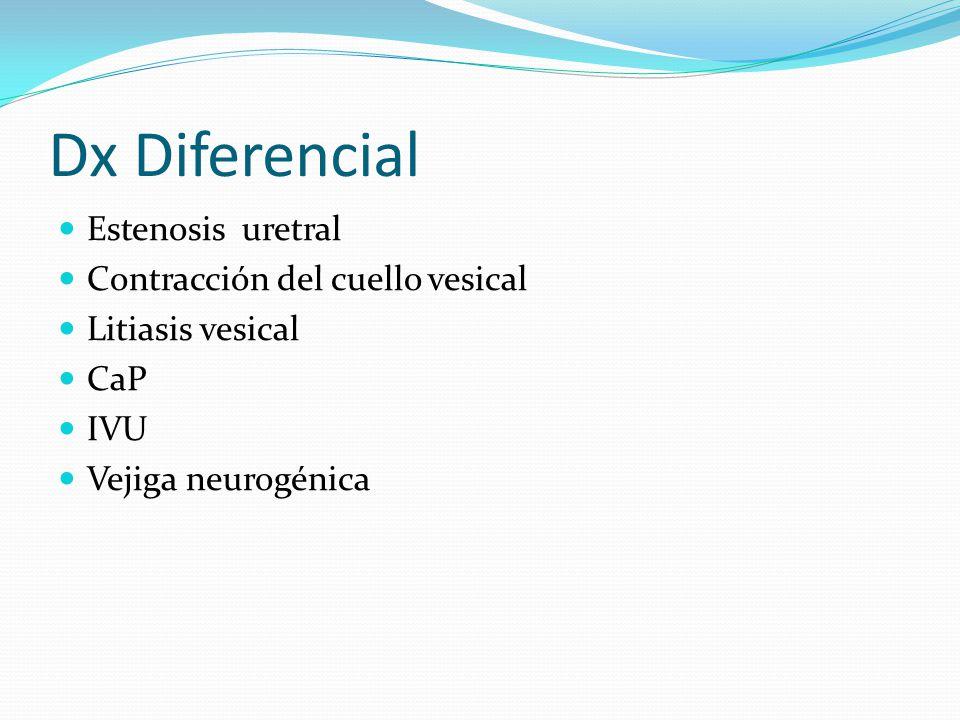 Dx Diferencial Estenosis uretral Contracción del cuello vesical Litiasis vesical CaP IVU Vejiga neurogénica