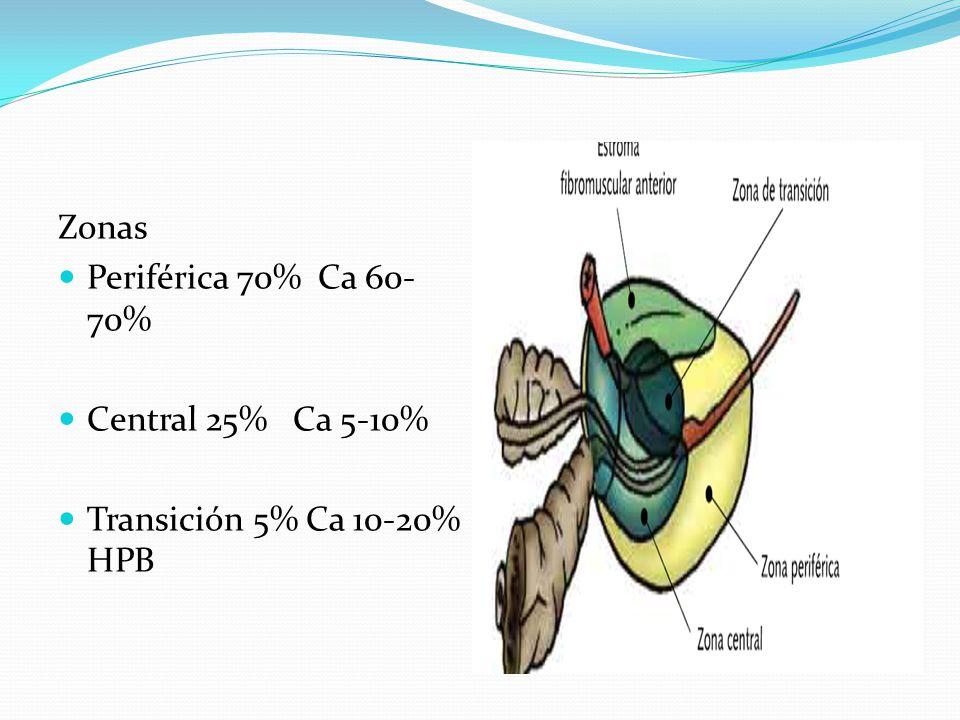 Zonas Periférica 70% Ca 60- 70% Central 25% Ca 5-10% Transición 5% Ca 10-20% HPB