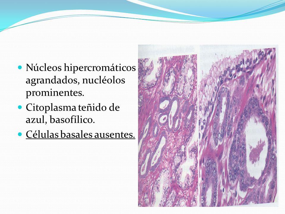 Núcleos hipercromáticos agrandados, nucléolos prominentes. Citoplasma teñido de azul, basofílico. Células basales ausentes.