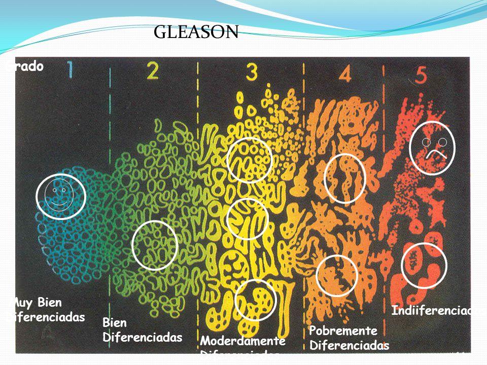 Grado Muy Bien Diferenciadas Bien Diferenciadas Moderdamente Diferenciadas Indiiferenciadas Pobremente Diferenciadas GLEASON