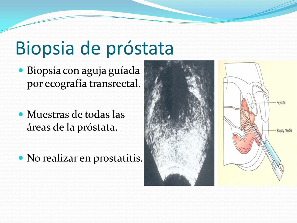 Biopsia de próstata Biopsia con aguja guíada por ecografía transrectal. Muestras de todas las áreas de la próstata. No realizar en prostatitis.