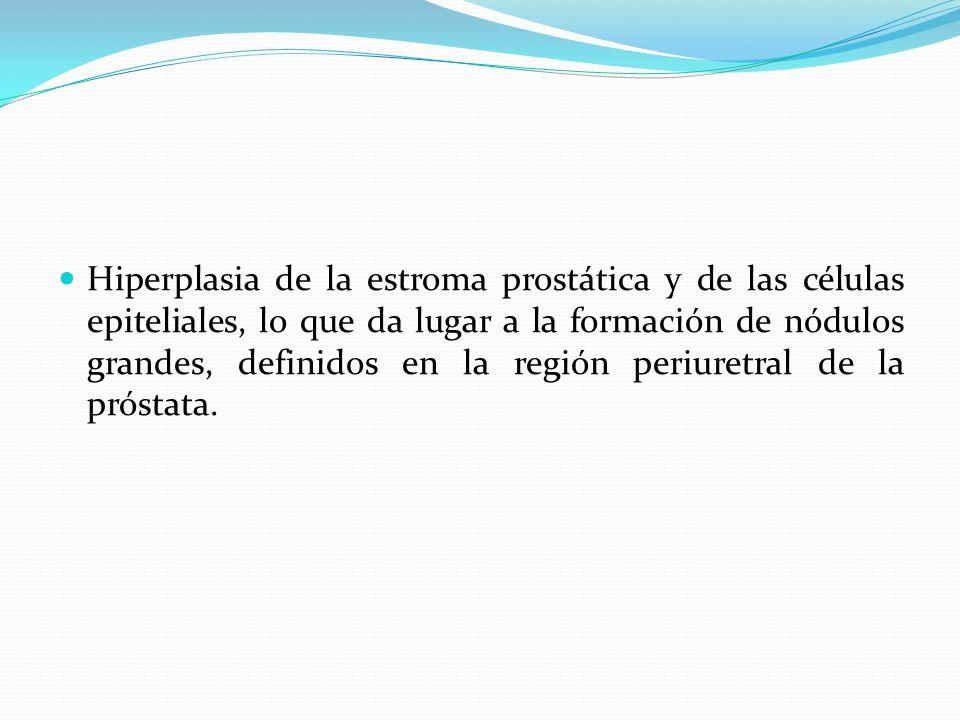 Hiperplasia de la estroma prostática y de las células epiteliales, lo que da lugar a la formación de nódulos grandes, definidos en la región periuretr