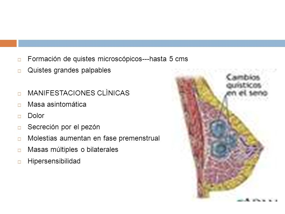 Formación de quistes microscópicos---hasta 5 cms Quistes grandes palpables MANIFESTACIONES CLÌNICAS Masa asintomática Dolor Secreción por el pezón Mol