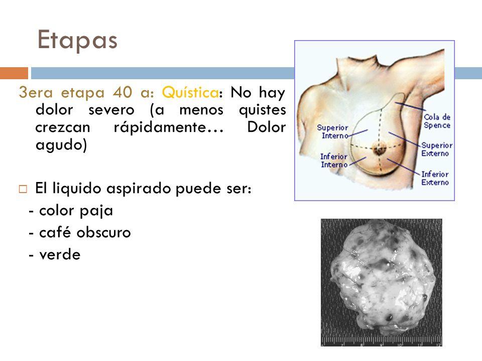 Etapas 1era 20 años: Mastoplasia: Dolor en CSE. Cola de Spence está indurada. Intensa proliferación del estroma 2da 30 años: Adenosis (aumento acinos)