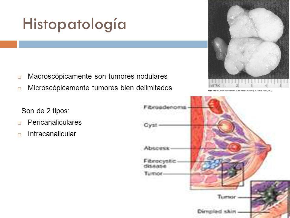 Histopatología Macroscópicamente son tumores nodulares Microscópicamente tumores bien delimitados Son de 2 tipos: Pericanaliculares Intracanalicular