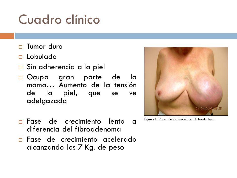 Cuadro clínico Tumor duro Lobulado Sin adherencia a la piel Ocupa gran parte de la mama… Aumento de la tensión de la piel, que se ve adelgazada Fase de crecimiento lento a diferencia del fibroadenoma Fase de crecimiento acelerado alcanzando los 7 Kg.