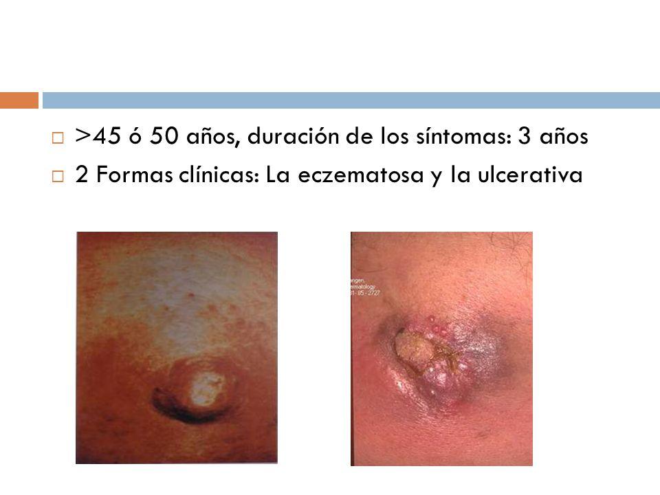 >45 ó 50 años, duración de los síntomas: 3 años 2 Formas clínicas: La eczematosa y la ulcerativa