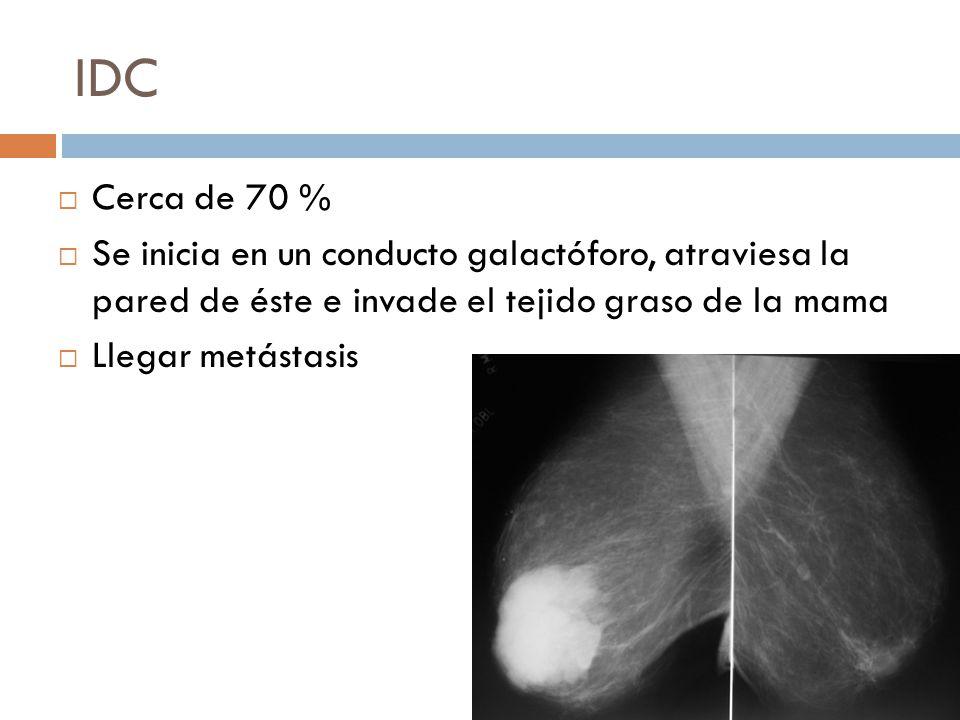 IDC Cerca de 70 % Se inicia en un conducto galactóforo, atraviesa la pared de éste e invade el tejido graso de la mama Llegar metástasis