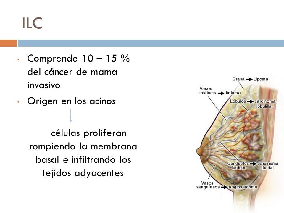 ILC Comprende 10 – 15 % del cáncer de mama invasivo Origen en los acinos células proliferan rompiendo la membrana basal e infiltrando los tejidos adyacentes