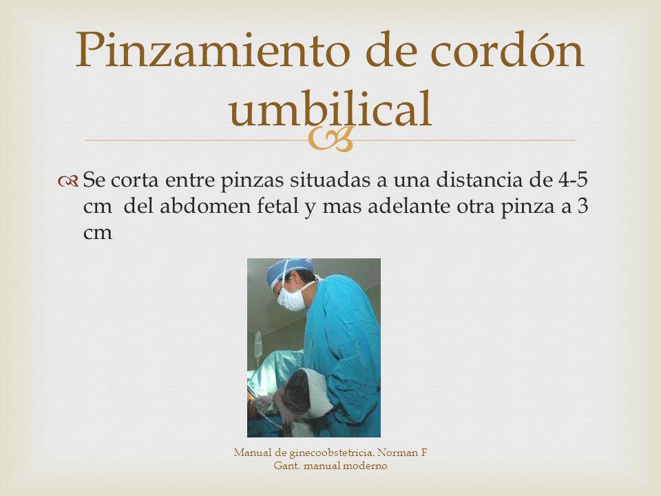 Se corta entre pinzas situadas a una distancia de 4-5 cm del abdomen fetal y mas adelante otra pinza a 3 cm Pinzamiento de cordón umbilical Manual de ginecoobstetricia.