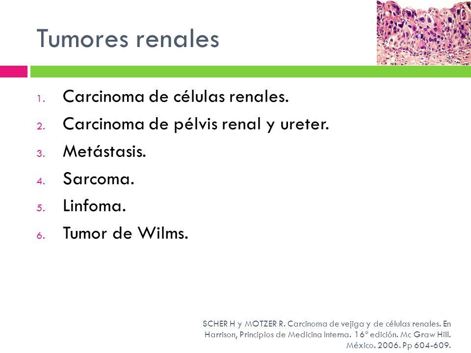 Tumores renales 1. Carcinoma de células renales. 2. Carcinoma de pélvis renal y ureter. 3. Metástasis. 4. Sarcoma. 5. Linfoma. 6. Tumor de Wilms. SCHE