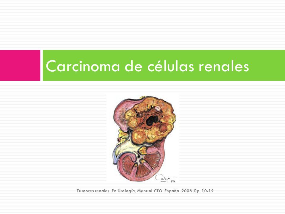 Carcinoma de células renales Tumores renales. En Urología, Manual CTO. España. 2006. Pp. 10-12.