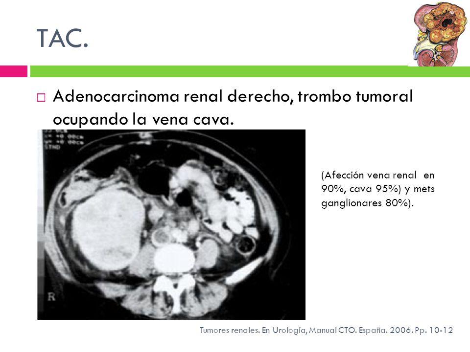 TAC. Adenocarcinoma renal derecho, trombo tumoral ocupando la vena cava. Tumores renales. En Urología, Manual CTO. España. 2006. Pp. 10-12 (Afección v