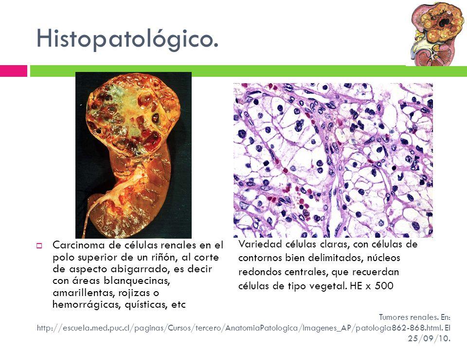 Histopatológico. Carcinoma de células renales en el polo superior de un riñón, al corte de aspecto abigarrado, es decir con áreas blanquecinas, amaril