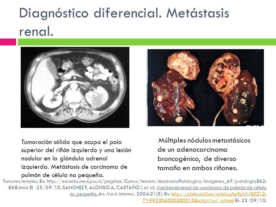 Diagnóstico diferencial. Metástasis renal. Múltiples nódulos metastásicos de un adenocarcinoma broncogénico, de diverso tamaño en ambos riñones. Tumor