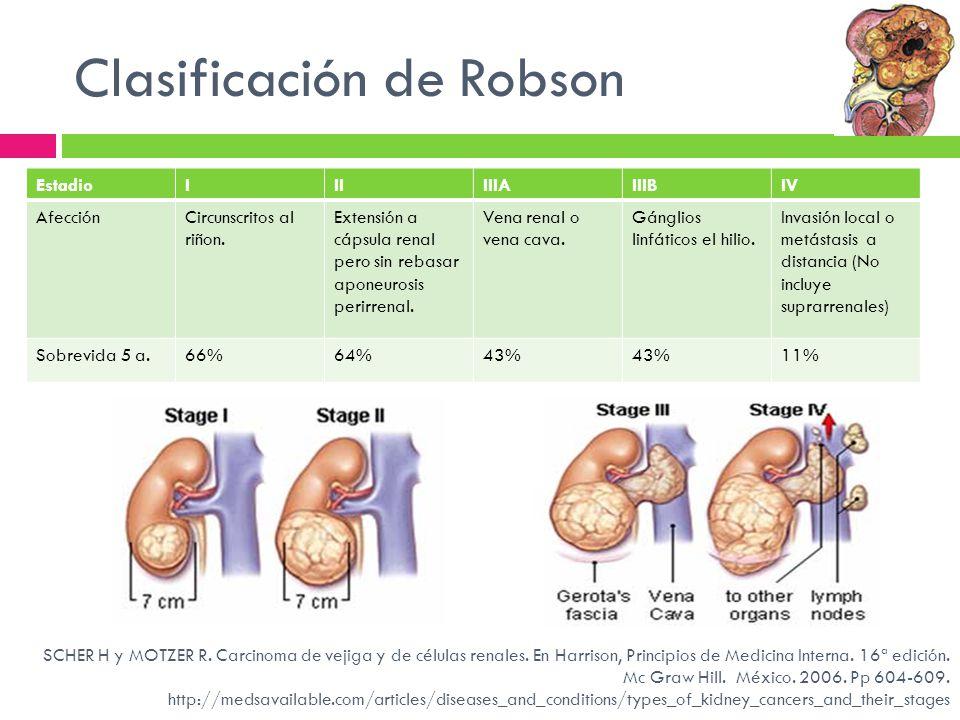 Clasificación de Robson SCHER H y MOTZER R. Carcinoma de vejiga y de células renales. En Harrison, Principios de Medicina Interna. 16ª edición. Mc Gra