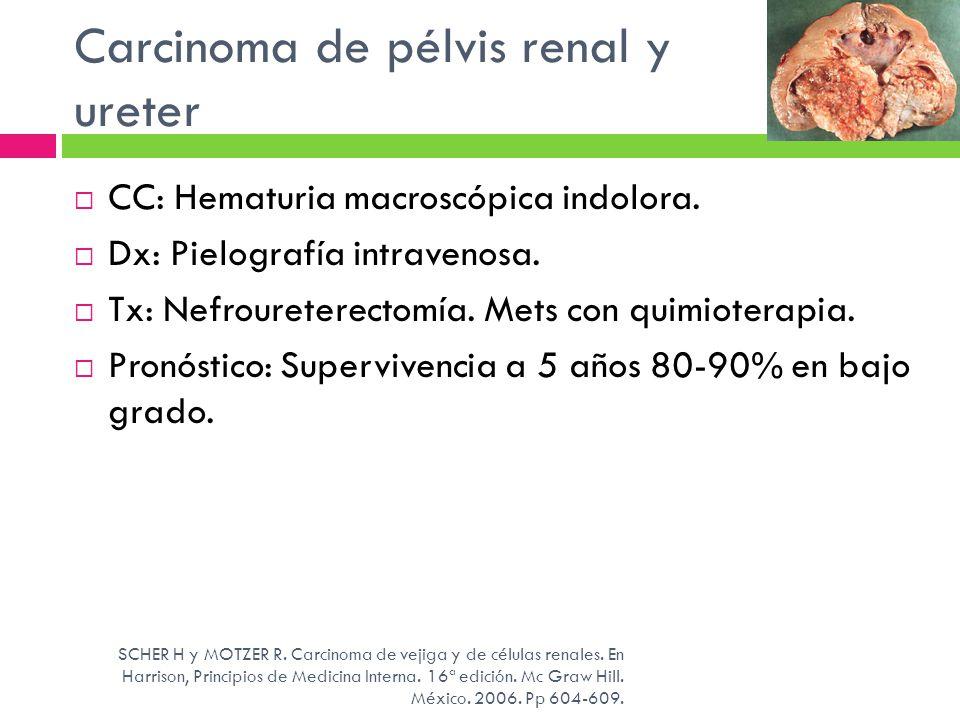 Carcinoma de pélvis renal y ureter CC: Hematuria macroscópica indolora. Dx: Pielografía intravenosa. Tx: Nefroureterectomía. Mets con quimioterapia. P