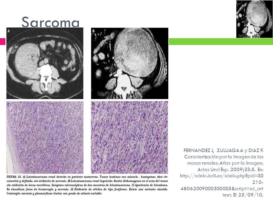 Sarcoma FERNANDEZ J, ZULUAGA A y DIAZ F. Caracterización por la imagen de las masas renales. Atlas por la imagen. Actas Urol Esp. 2009;33:5. En: http: