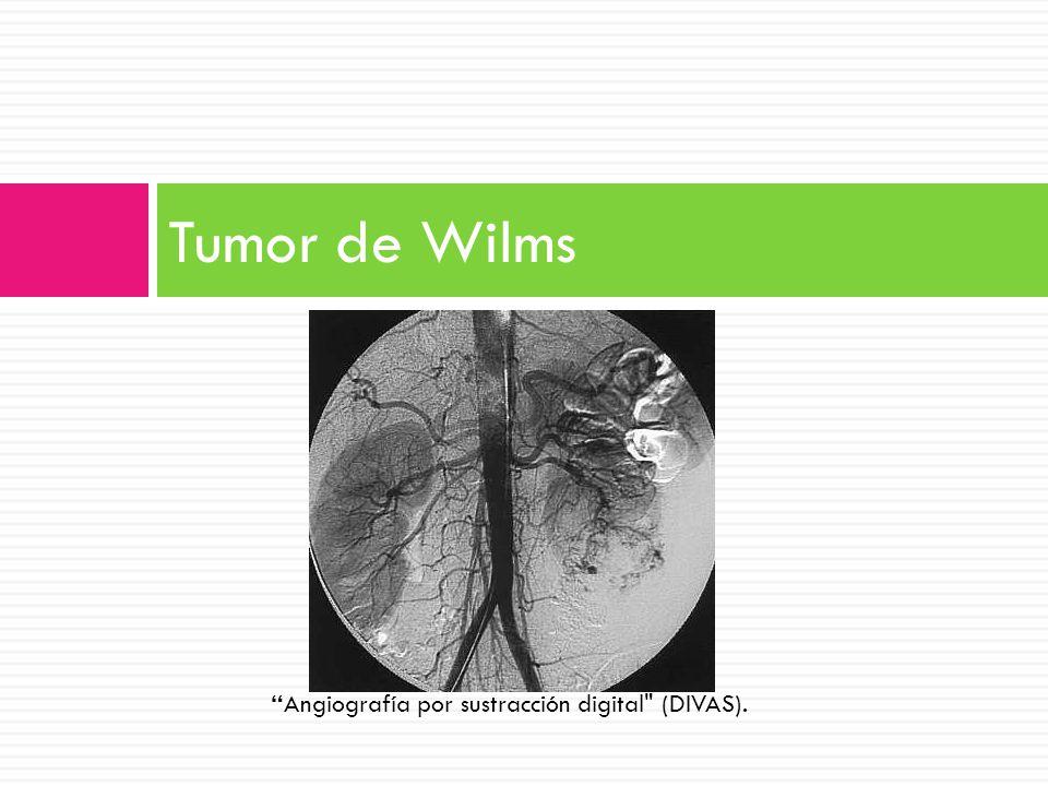 Tumor de Wilms Angiografía por sustracción digital