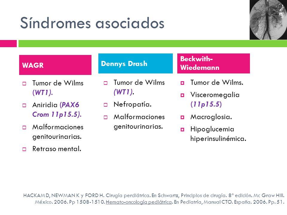 Síndromes asociados Tumor de Wilms (WT1). Aniridia (PAX6 Crom 11p15.5). Malformaciones genitourinarias. Retraso mental. WAGR Dennys Drash Tumor de Wil