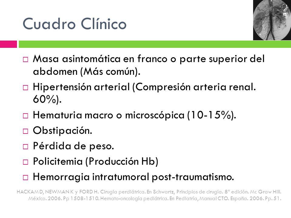 Cuadro Clínico Masa asintomática en franco o parte superior del abdomen (Más común). Hipertensión arterial (Compresión arteria renal. 60%). Hematuria