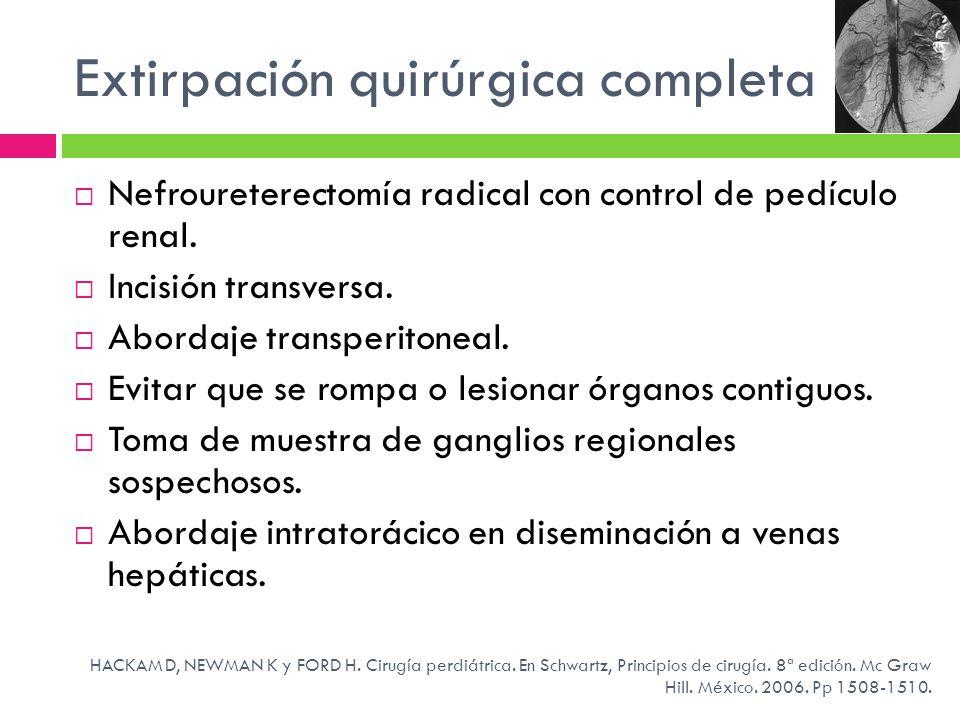 Extirpación quirúrgica completa Nefroureterectomía radical con control de pedículo renal. Incisión transversa. Abordaje transperitoneal. Evitar que se