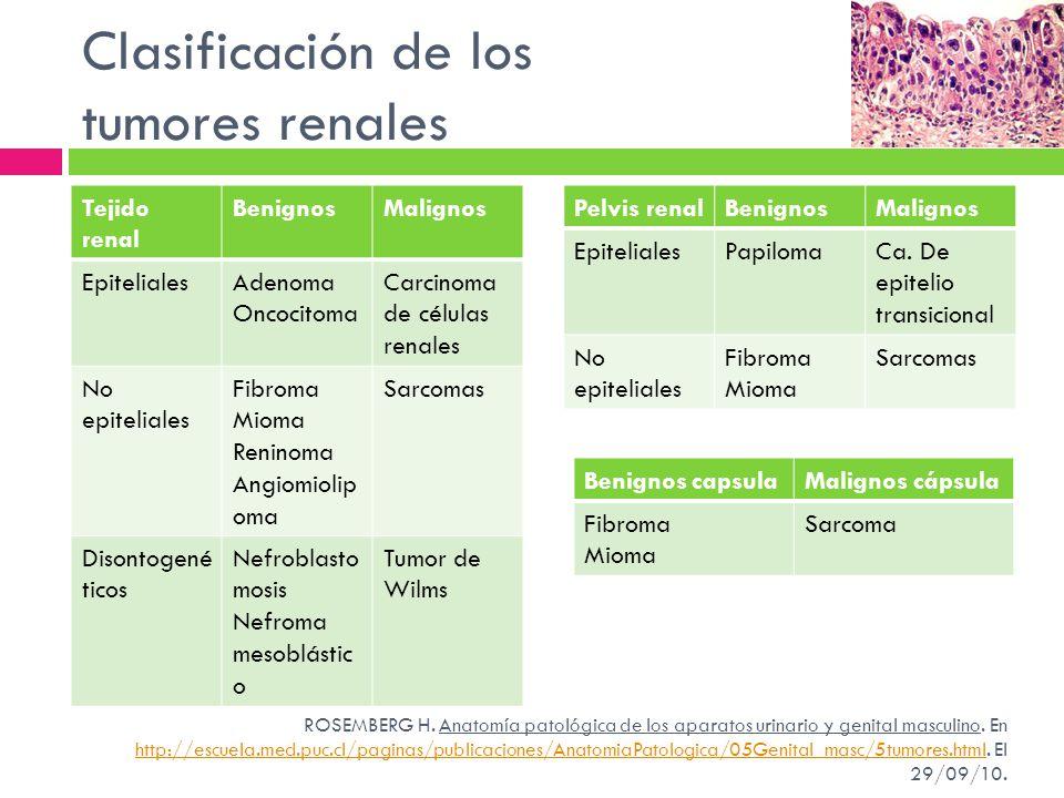 Clasificación de los tumores renales Tejido renal BenignosMalignos EpitelialesAdenoma Oncocitoma Carcinoma de células renales No epiteliales Fibroma M