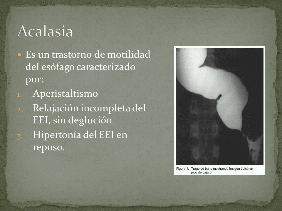 Es un trastorno de motilidad del esófago caracterizado por: 1. Aperistaltismo 2. Relajación incompleta del EEI, sin deglución 3. Hipertonía del EEI en