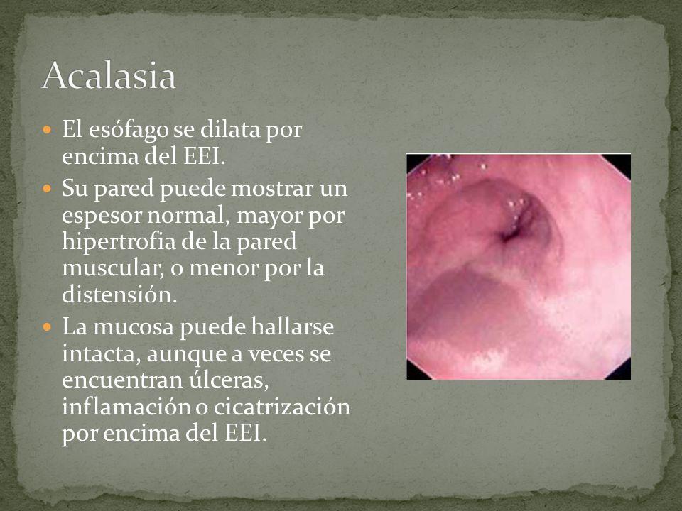 El esófago se dilata por encima del EEI. Su pared puede mostrar un espesor normal, mayor por hipertrofia de la pared muscular, o menor por la distensi
