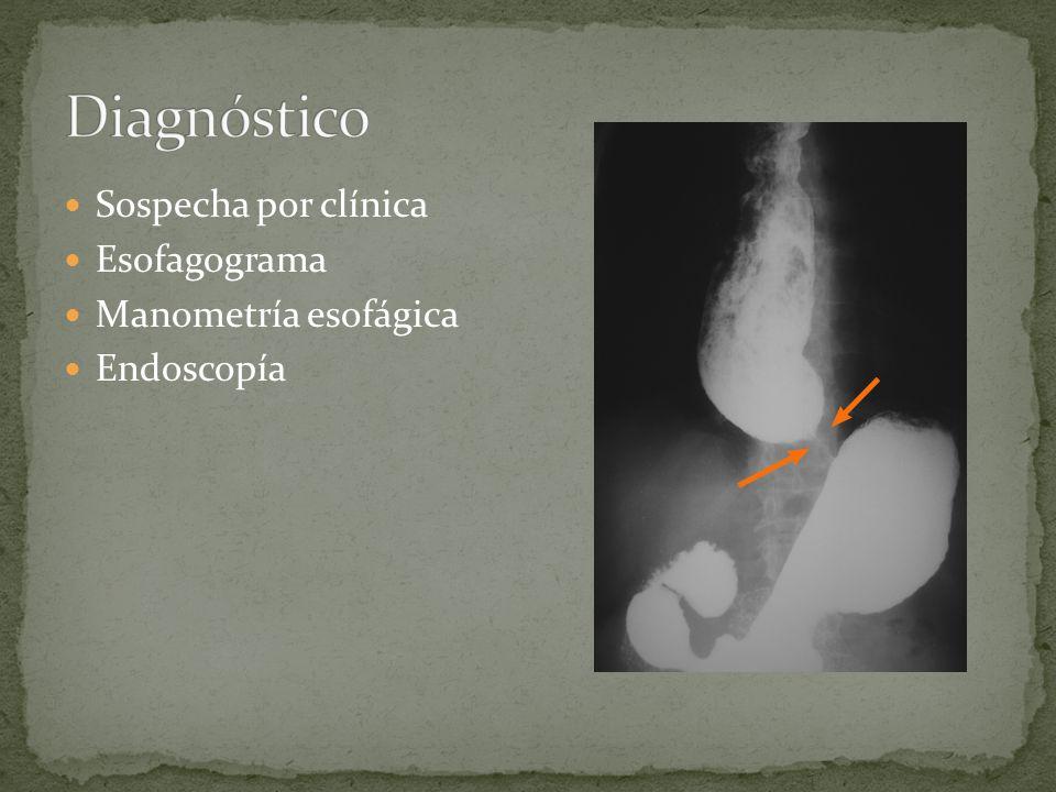 Sospecha por clínica Esofagograma Manometría esofágica Endoscopía