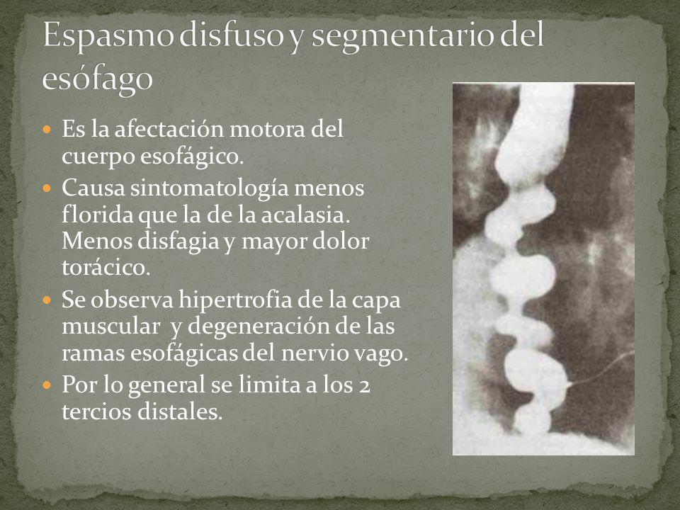 Es la afectación motora del cuerpo esofágico. Causa sintomatología menos florida que la de la acalasia. Menos disfagia y mayor dolor torácico. Se obse