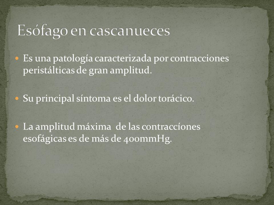 Es una patología caracterizada por contracciones peristálticas de gran amplitud. Su principal síntoma es el dolor torácico. La amplitud máxima de las