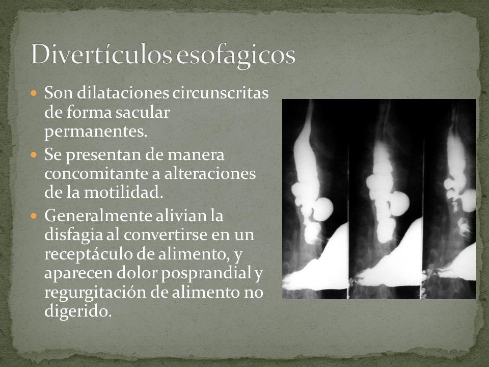 Son dilataciones circunscritas de forma sacular permanentes. Se presentan de manera concomitante a alteraciones de la motilidad. Generalmente alivian