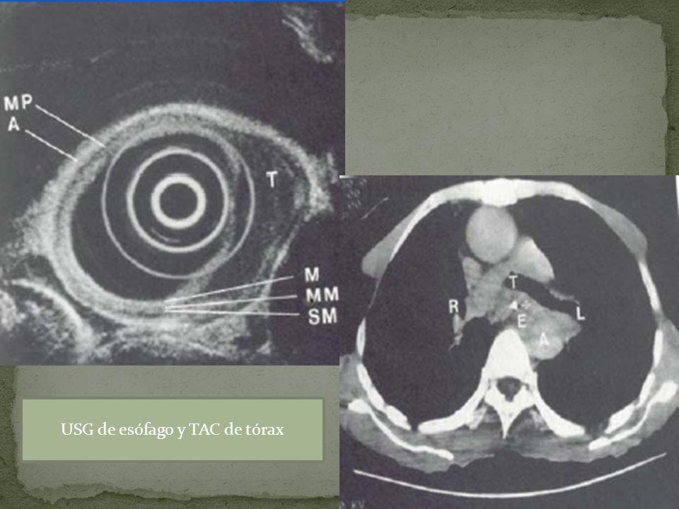 USG de esófago y TAC de tórax