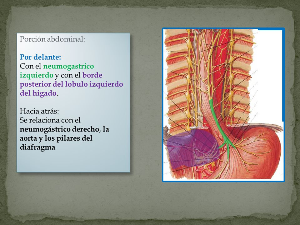 Es una metaplasia intestinal del segmento inferior del esófago.