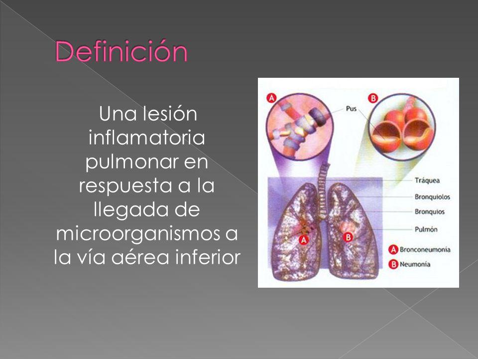 Una lesión inflamatoria pulmonar en respuesta a la llegada de microorganismos a la vía aérea inferior