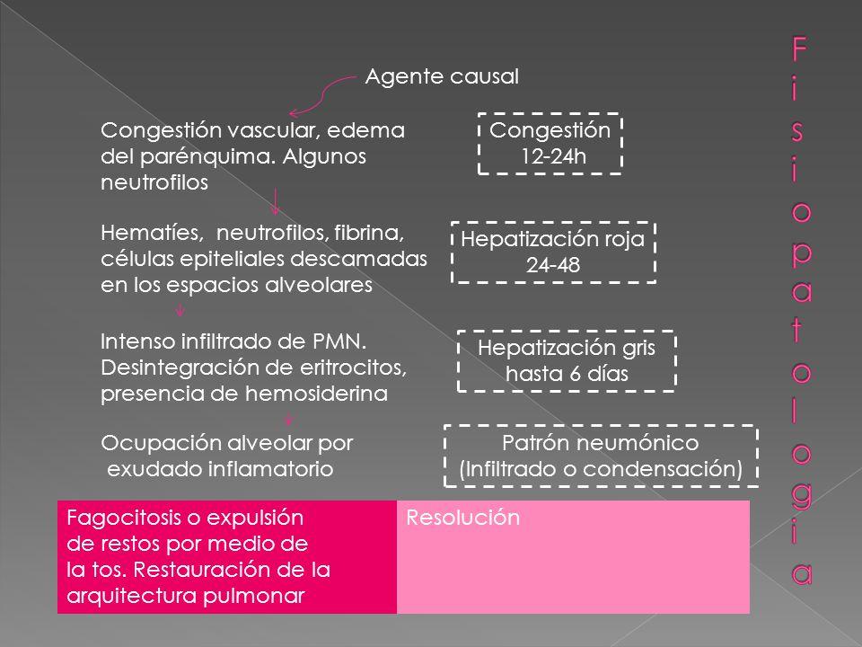 Agente causal Congestión vascular, edema del parénquima.