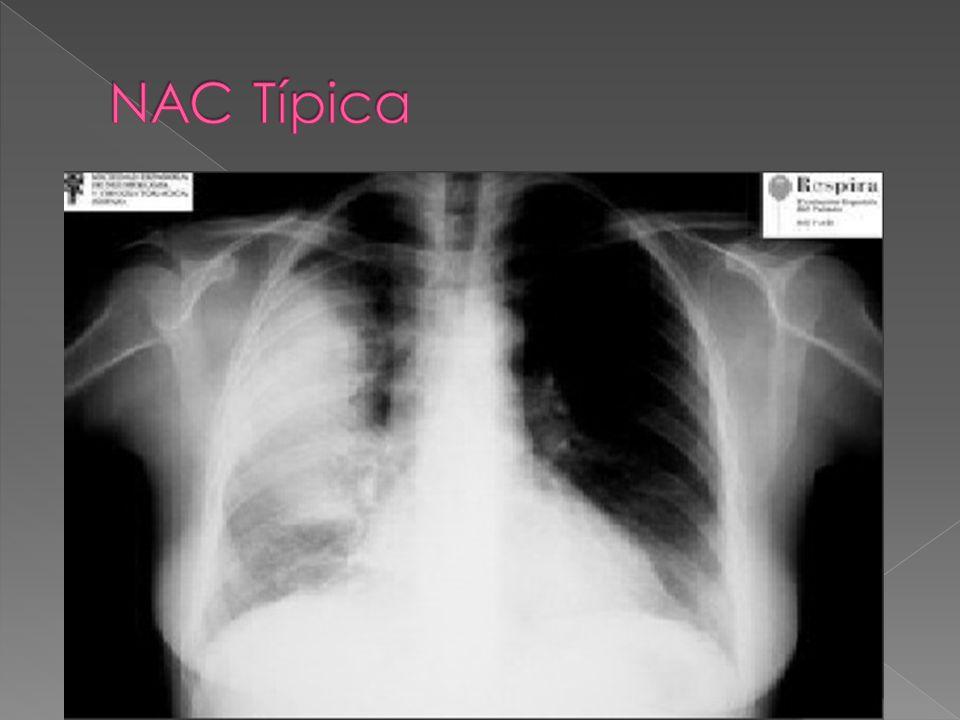 Cuadro súbito Fiebre alta Dolor pleurítico Tos Expectoración purulenta Leucocitosis con neutrofilia Exploración: Matidez a la percusión, soplo tubário, estertores crepitantes Rx: Consolidación pulmonar