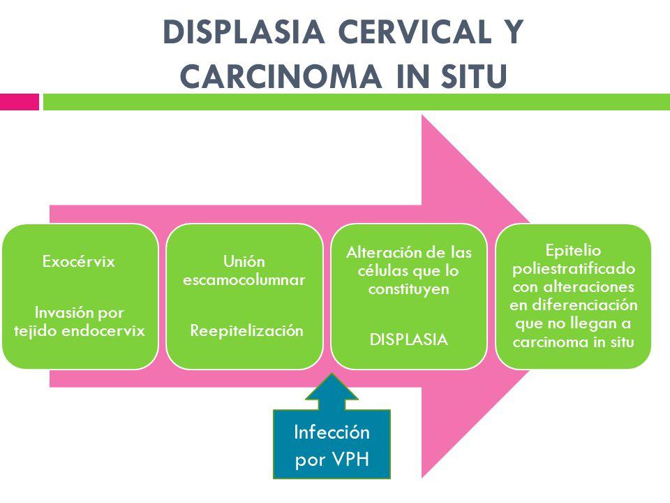 DISPLASIA CERVICAL Y CARCINOMA IN SITU Exocérvix Invasión por tejido endocervix Unión escamocolumnar Reepitelización Alteración de las células que lo
