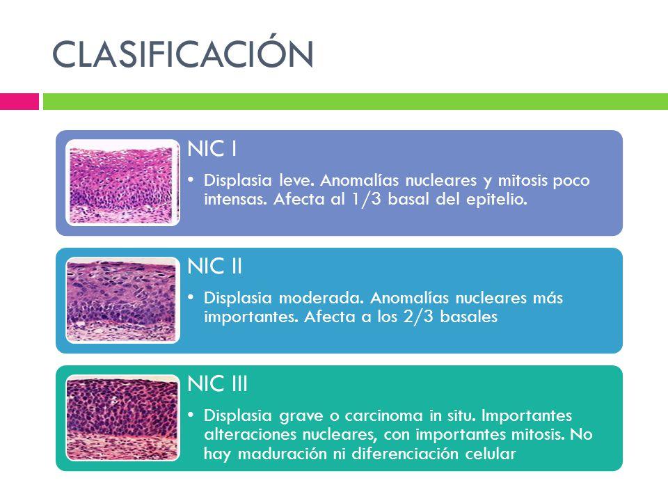 CLASIFICACIÓN NIC I Displasia leve. Anomalías nucleares y mitosis poco intensas. Afecta al 1/3 basal del epitelio. NIC II Displasia moderada. Anomalía