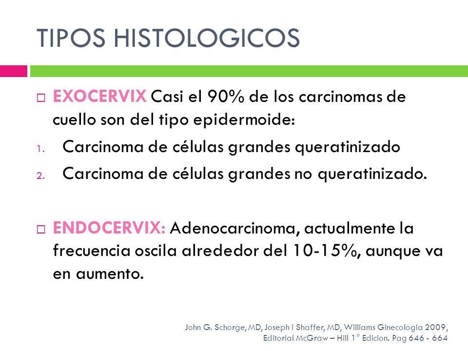 TIPOS HISTOLOGICOS EXOCERVIX Casi el 90% de los carcinomas de cuello son del tipo epidermoide: 1. Carcinoma de células grandes queratinizado 2. Carcin
