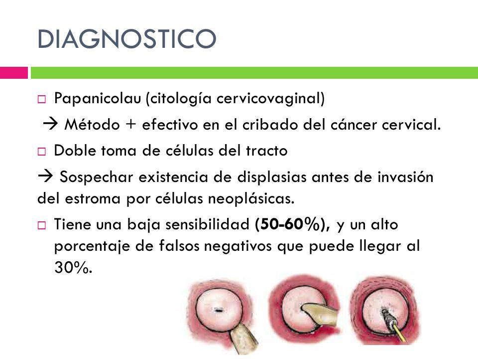 DIAGNOSTICO Papanicolau (citología cervicovaginal) Método + efectivo en el cribado del cáncer cervical. Doble toma de células del tracto Sospechar exi