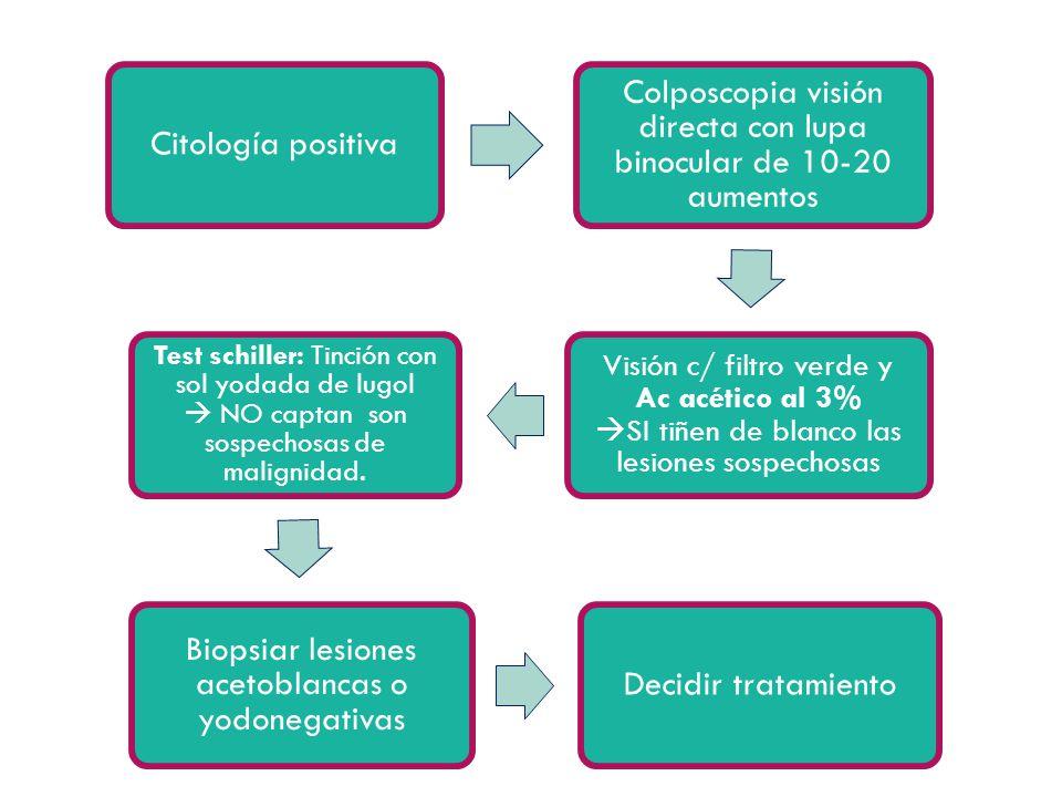Citología positiva Colposcopia visión directa con lupa binocular de 10-20 aumentos Visión c/ filtro verde y Ac acético al 3% SI tiñen de blanco las le
