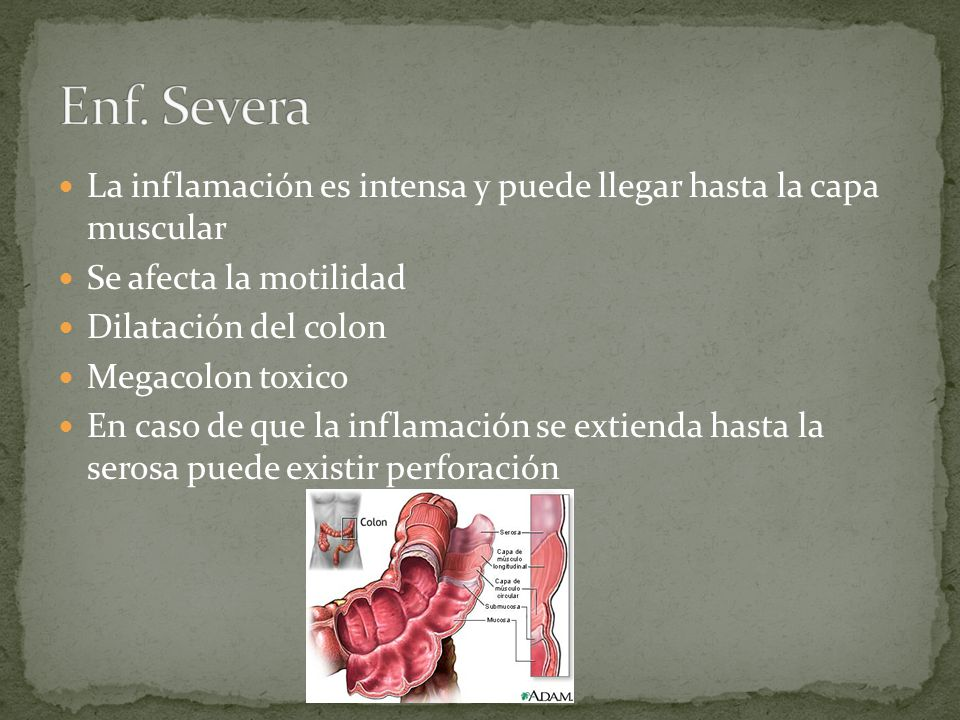 La inflamación es intensa y puede llegar hasta la capa muscular Se afecta la motilidad Dilatación del colon Megacolon toxico En caso de que la inflama