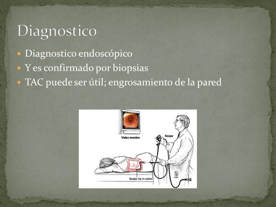 Diagnostico endoscópico Y es confirmado por biopsias TAC puede ser útil; engrosamiento de la pared