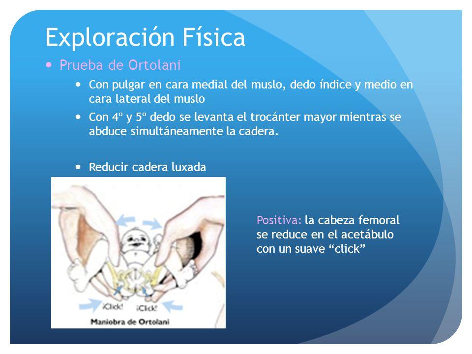 Exploración Física Prueba de Ortolani Con pulgar en cara medial del muslo, dedo índice y medio en cara lateral del muslo Con 4º y 5º dedo se levanta e